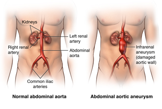Location of the aorta in the body